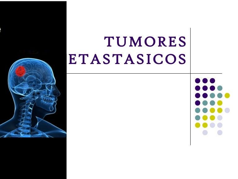 cancer de prostata metastase sintomas