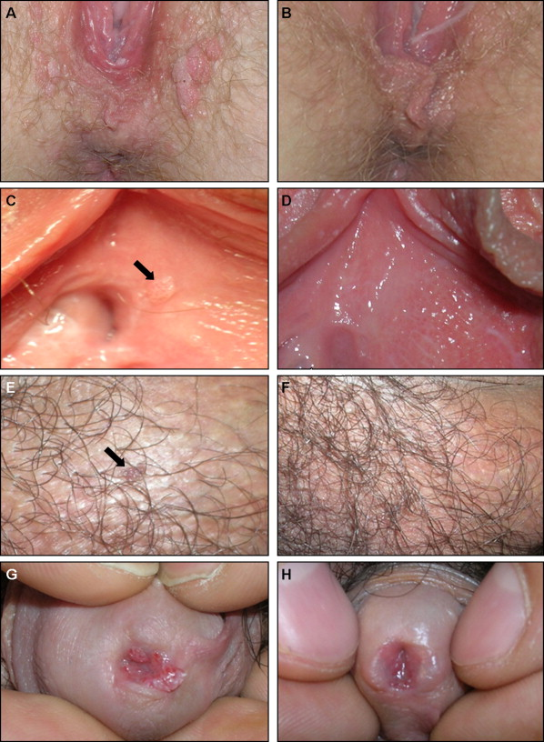 helminth infection in america papilloma frenulo linguale