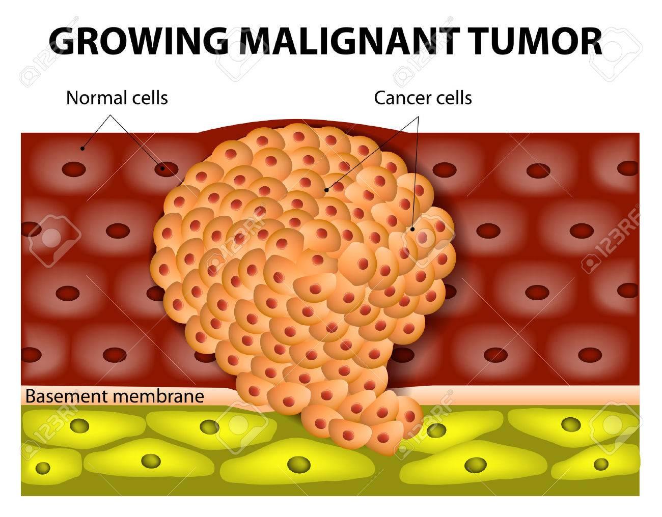 Celule tumorale maligne