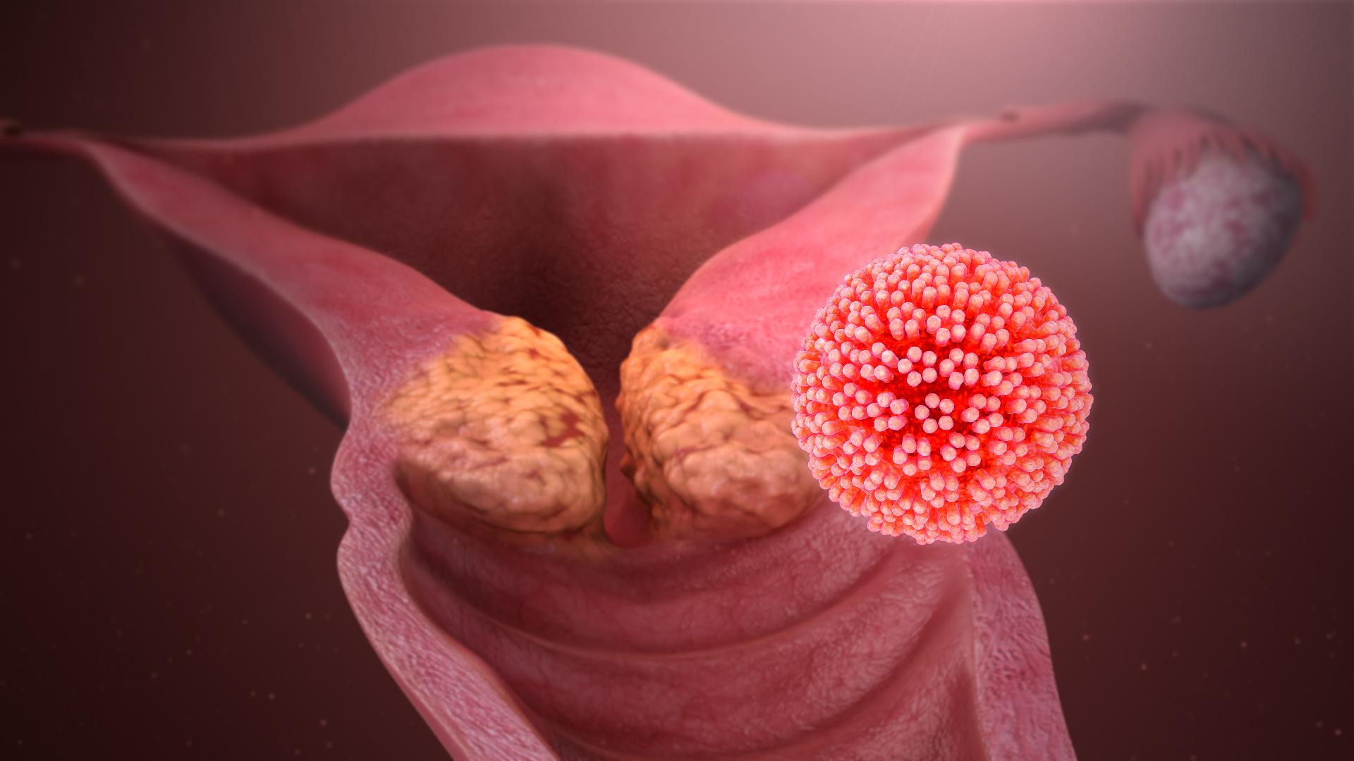 papilloma virus ad un uomo