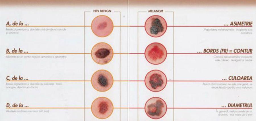 anemie neoplazica