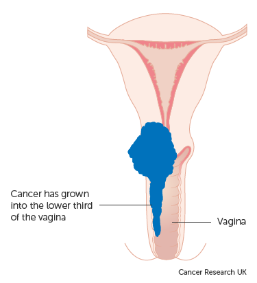 rectal cancer nccn 2019 simptome tenie
