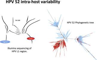 VIRUSUL HPV: mod de transmitere, simptome, preventie si tratament -
