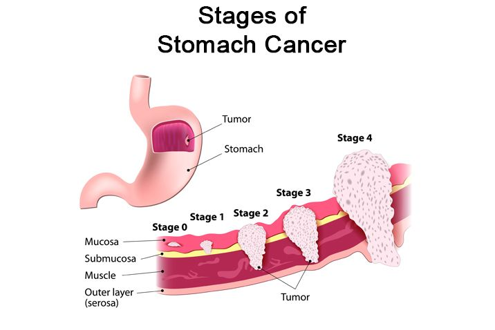 STOMACH CANCER IS A SILENT KILLER! HERE ARE THE SIGNS & SYMPTOMS |