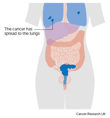 hpv cancer metastasis to lung