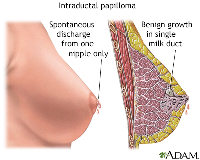 what causes papilloma breast