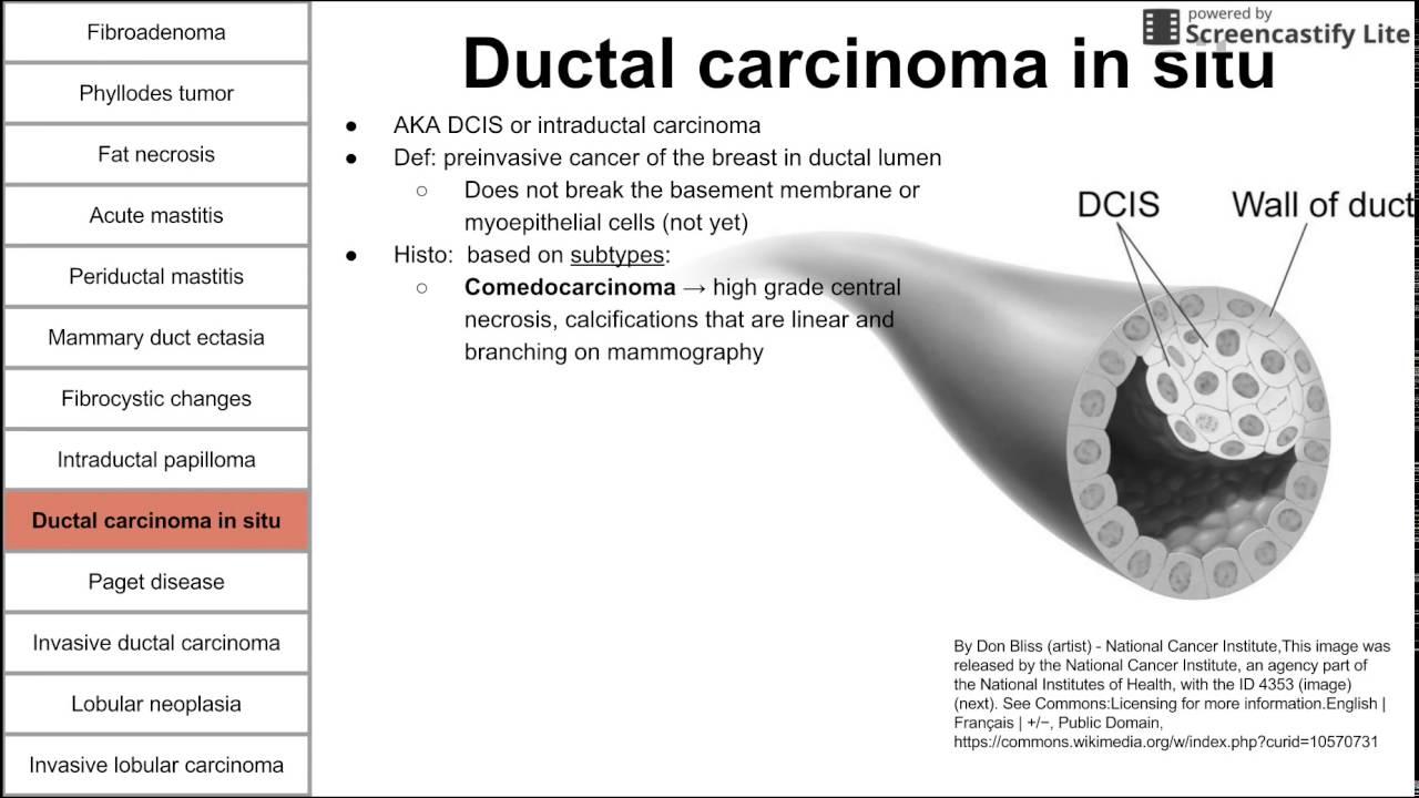 intraductal papilloma duct ectasia juvenile papilloma