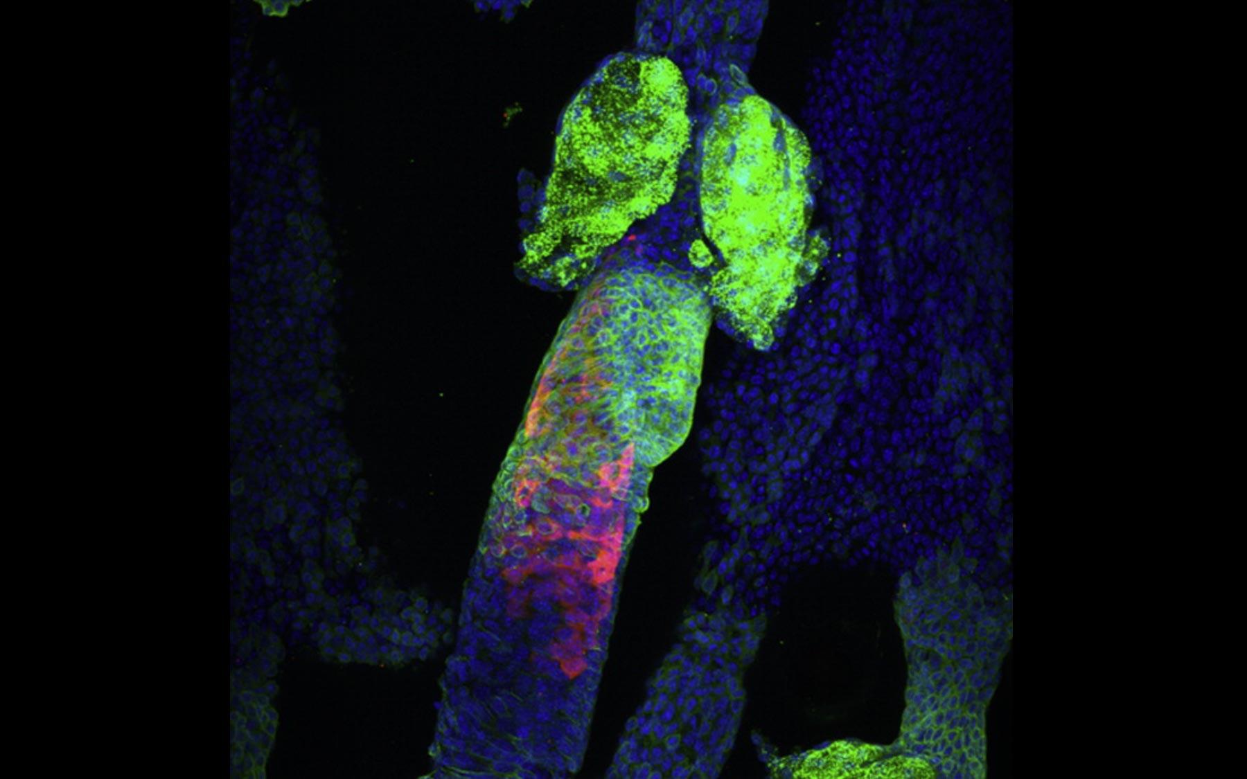 cancer genetic lesions cancer de piele din cauza solarului