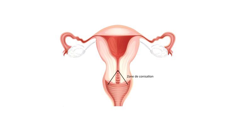 operation du papillomavirus cat cancer abdominal fluid