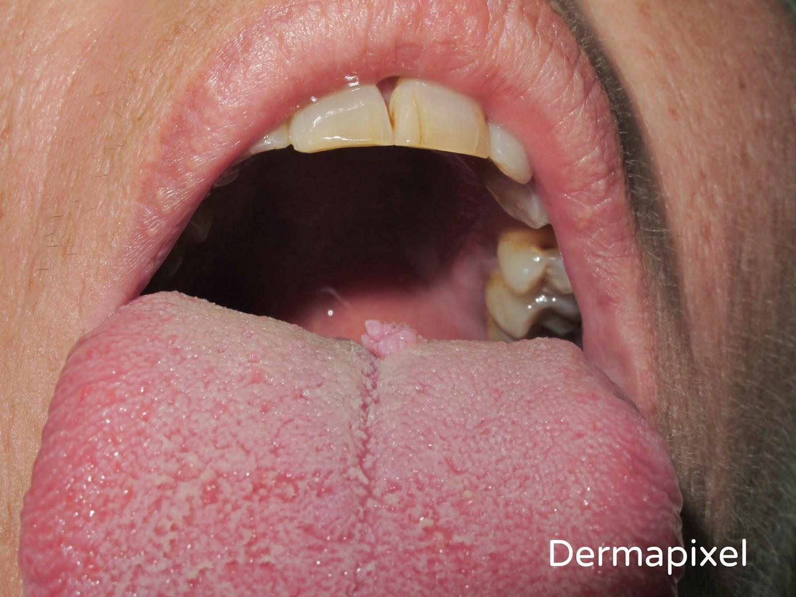 papiloma lingual tratamiento