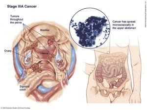 human papilloma kanker papiloma de seno maxilar