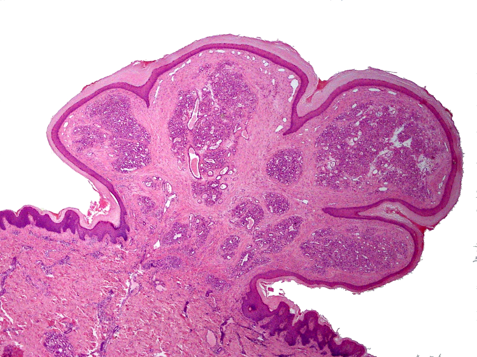 squamous papilloma thigh