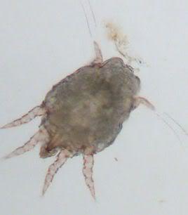 Helminti - paraziti se dívat