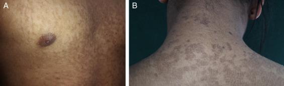 que es papilomatosis reticulada y confluente hpv impfung salzburg