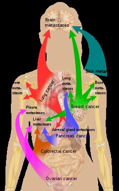 metastatic cancer marathi