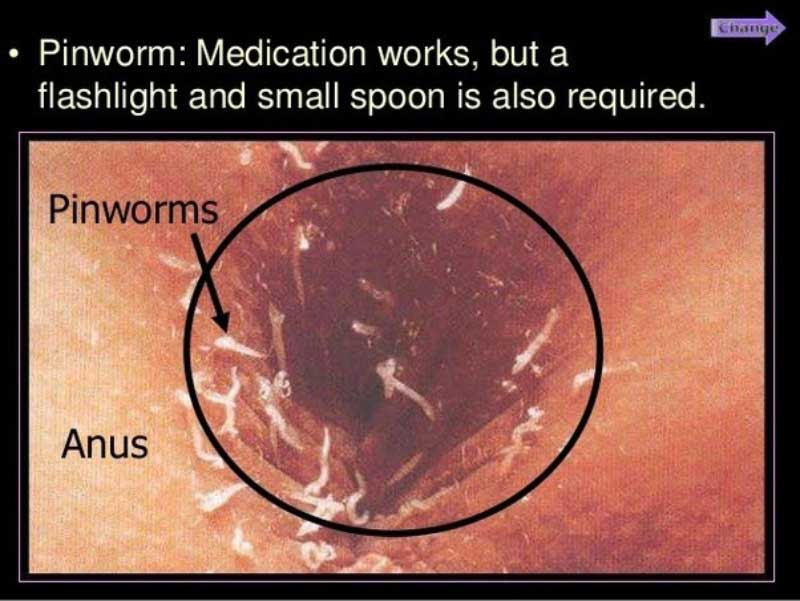 papilomatosis bovina virus