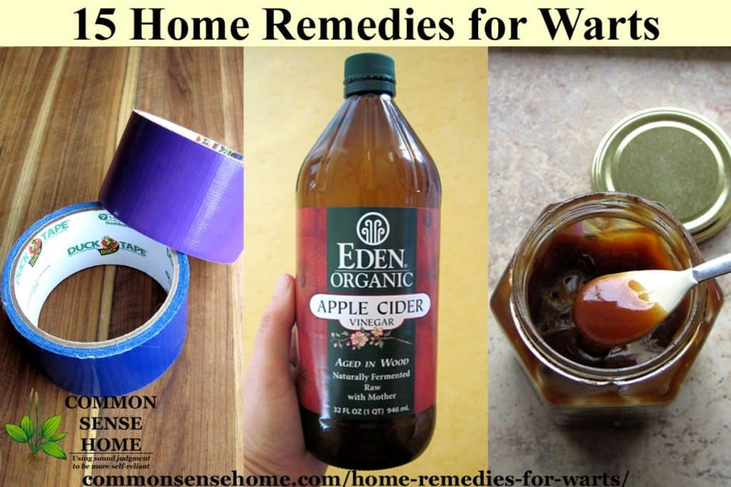 Home remedy for warts on face and neck