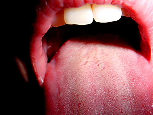 hpv dry throat enterobius vermicularis geographic location