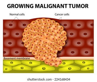 cancer cell malign