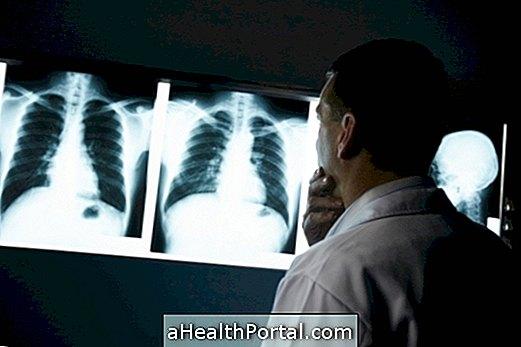Cancerul pulmonar este aproape de vindecare! - Revista Galenus