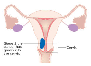 aggressive cancer of the womb papiloma humano en hombres test