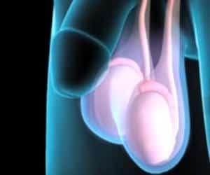 cancer de pancreas minsal endometrial cancer histopathology