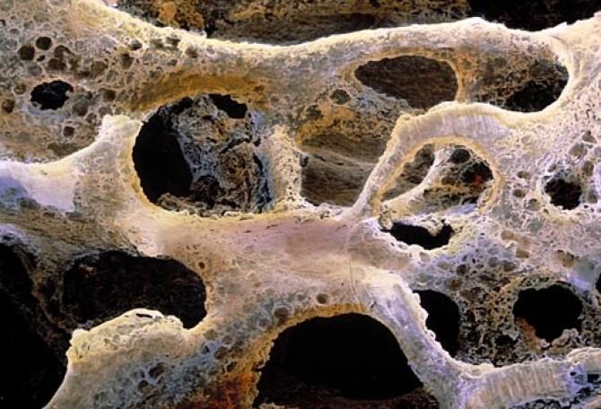 Sarcomul Osos