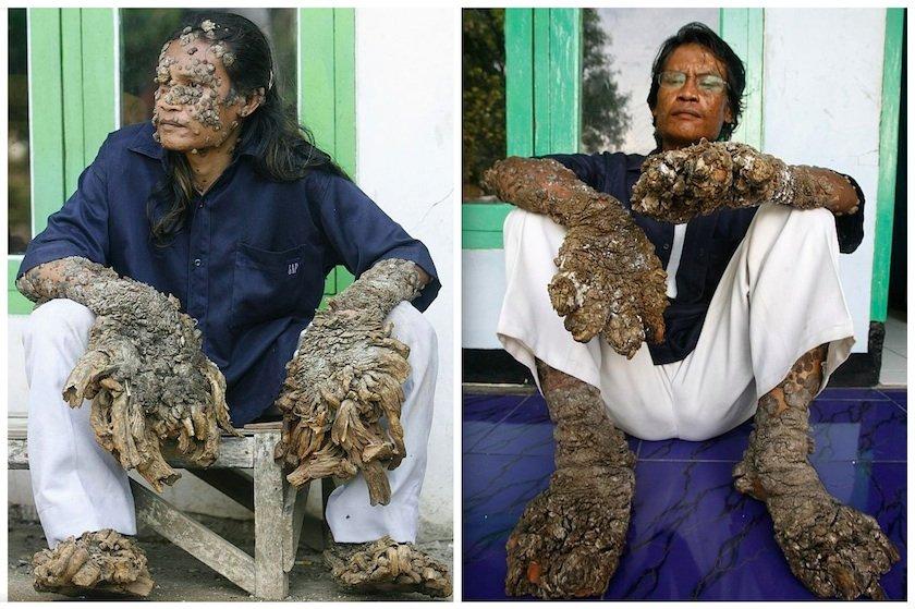 operazione papilloma virus uomo