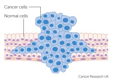 cancer benign tissue