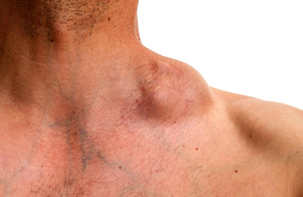 Un caz complex de limfom Hodgkin clasic recidivat refractar – scleroză nodulară