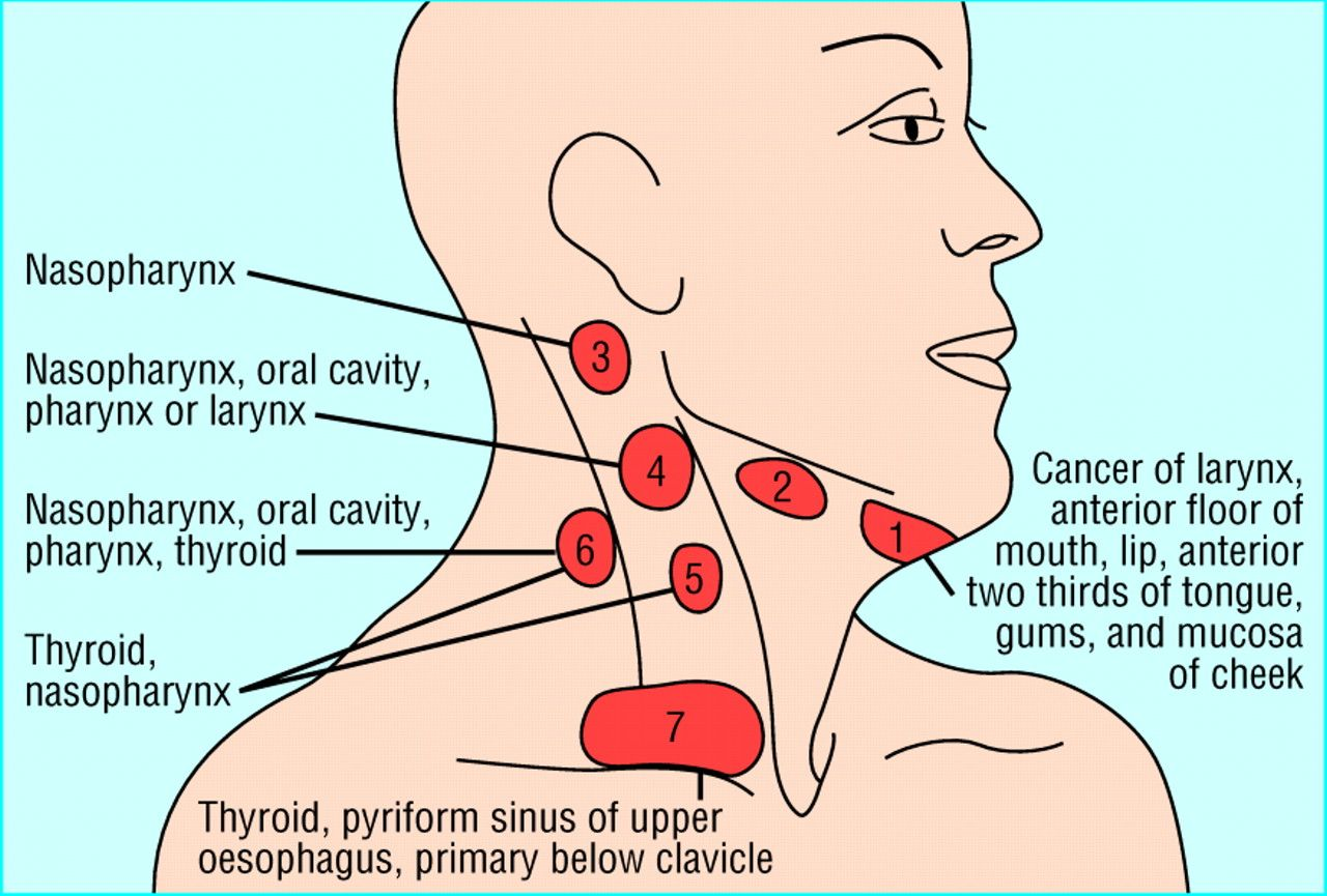 cancer of cervical lymph nodes