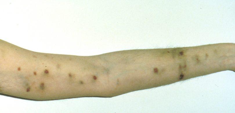 sarcoma cancer rare