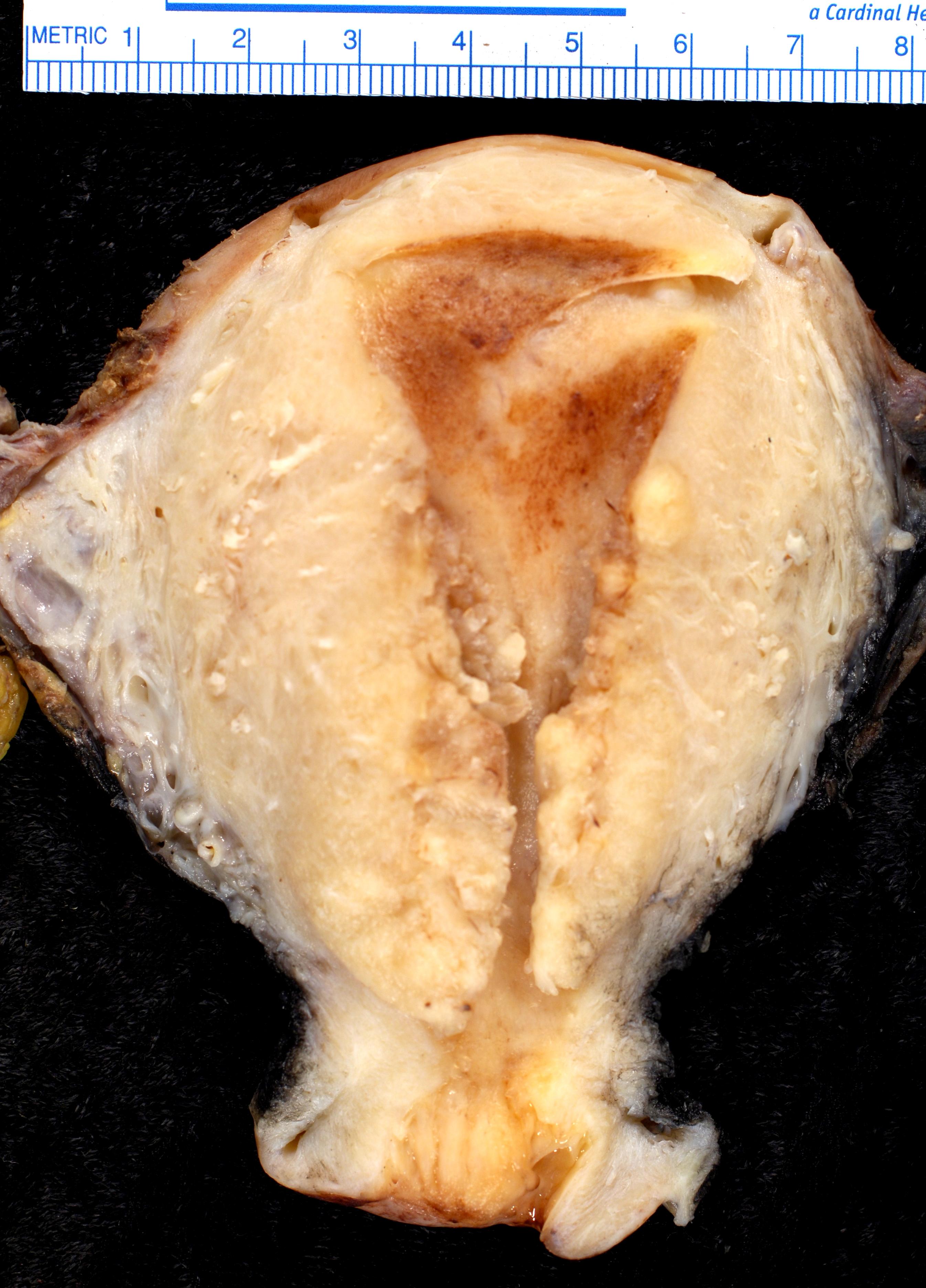 cancer de utero endometrial