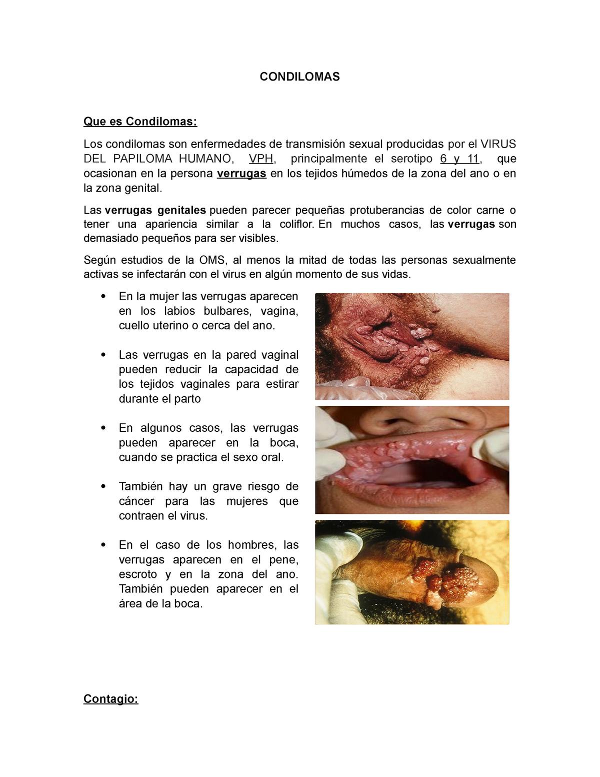 Metode pentru tratarea varicelor perhidrol