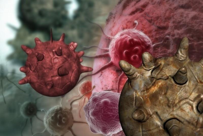 cancerul cu metastaze cancerul de gat simptome