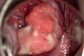 traitement papillomavirus et grossesse cervical cancer medscape