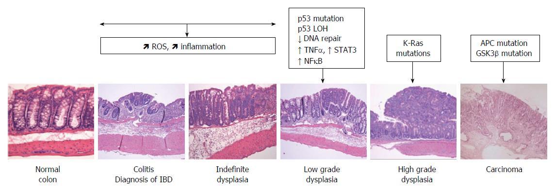 cancer colon progression enterobius vermicularis medikamente
