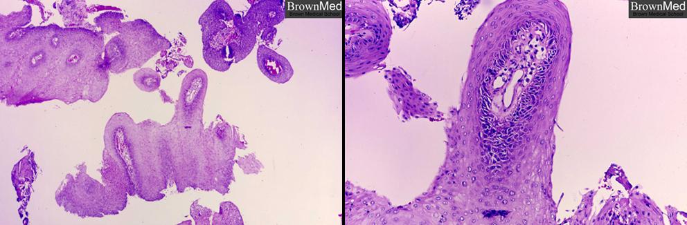 benign neoplasm larynx papillomatosis hpv impfung mit 25
