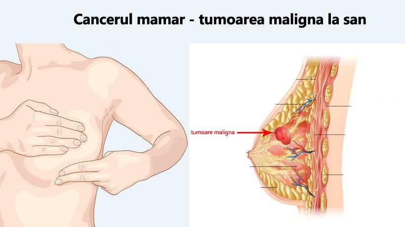 cancerul mamar se vindeca