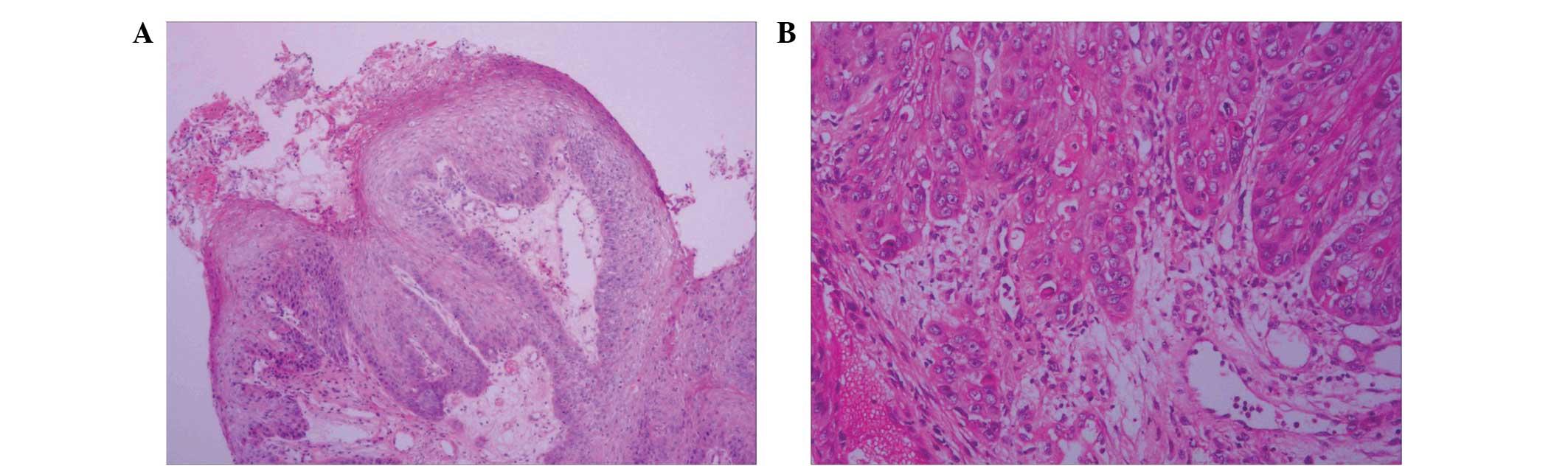 papilloma squamous cell papiloma humano tipo virus