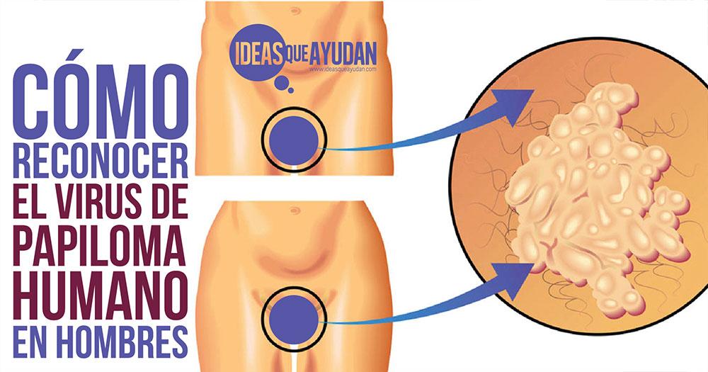 virus del papiloma humano en hombres como se contagia cancer que enfermedad es