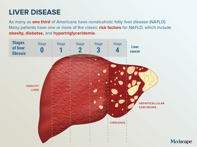 hepatic cancer medscape