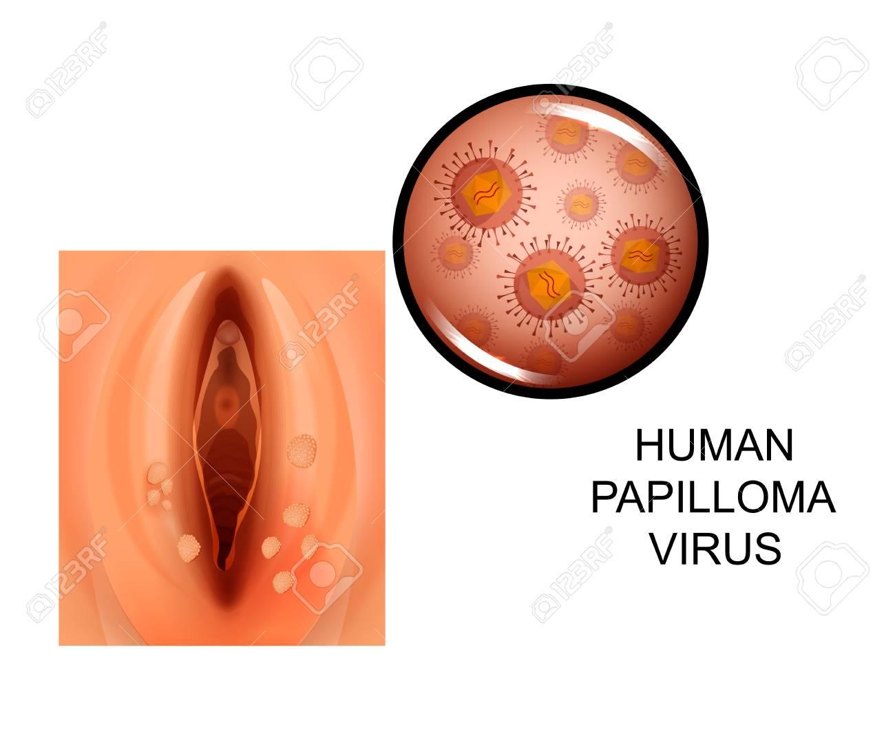 hpv virus italiano