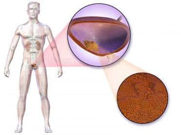 cancer vezica urinara barbati