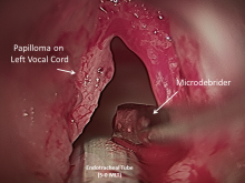 peritoneal cancer endometriosis hpv skin virus