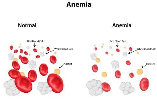 Tratamente naturiste pentru combaterea anemiei