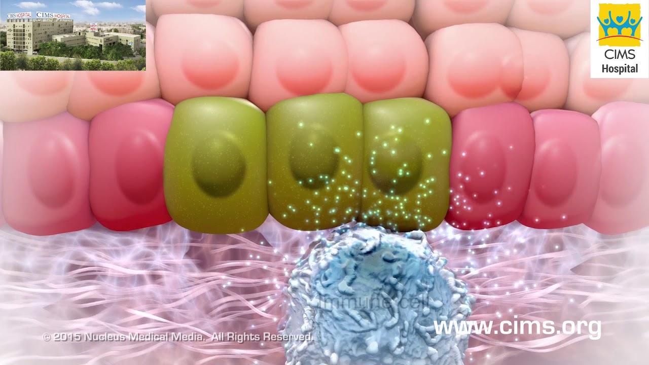 Remove Skin Tags & Warts