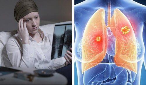 Numărul cazurilor de cancer pulmonar la femei, în creștere