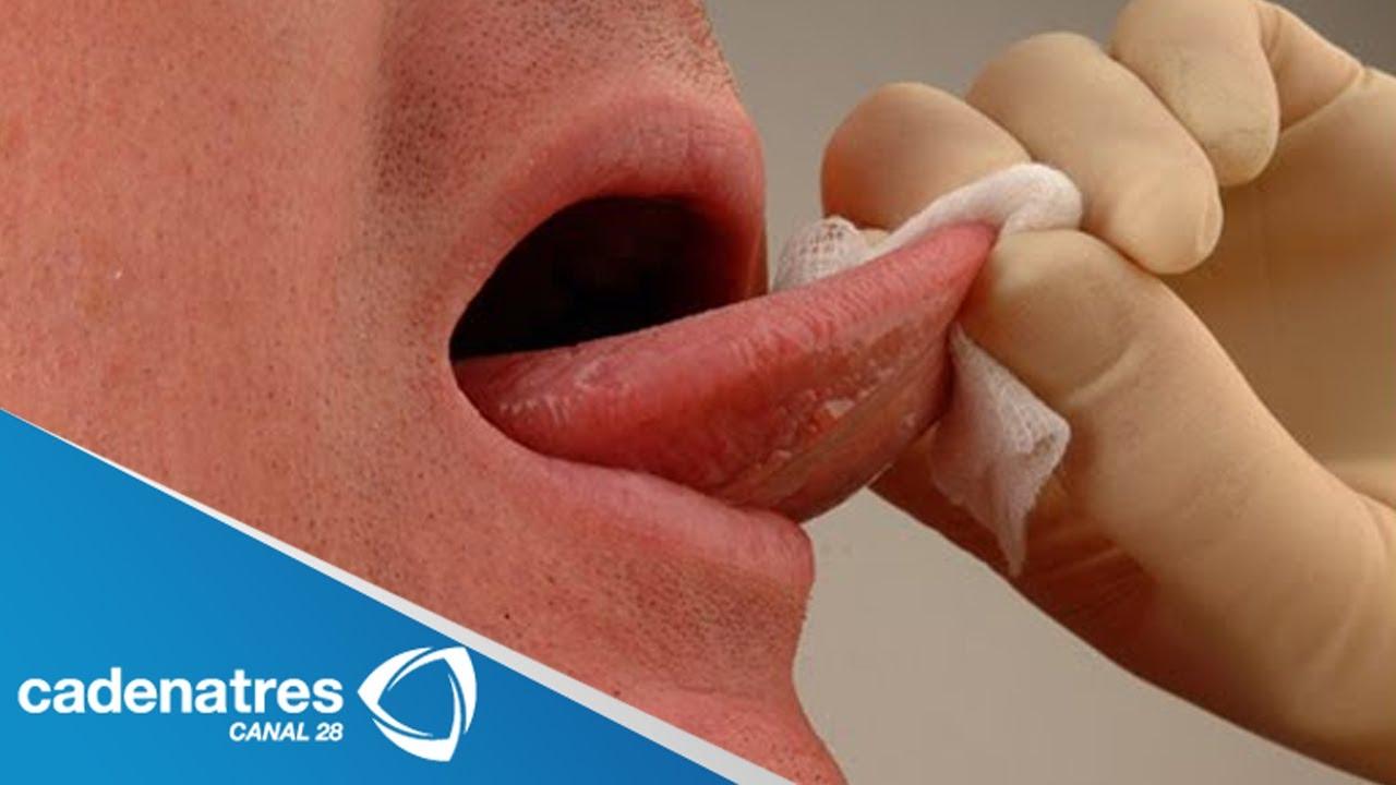 cancer de boca hpv sintomas