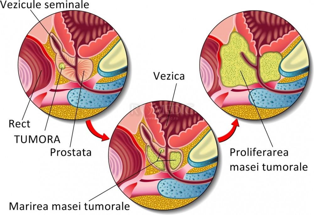 cancerul de prostata tratament hormonal detoxifiere aluminiu